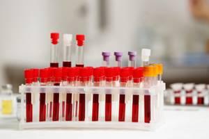 Ретикулоциты повышены: причины, что это означает?