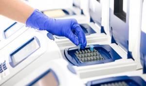 Анализ на грибок ногтей: где и как сдать?