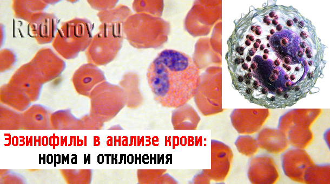 Эозинофилы в крови: как обозначаются в анализе, функции, норма