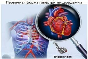 Триглицериды повышены: что это значит, возможные причины