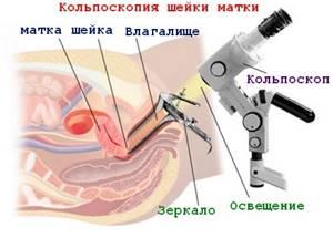 Кольпоскопия шейки матки: что это такое, как ее делают, и как подготовиться?