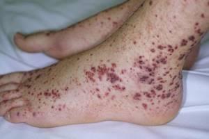 Аутоиммунная и иммунная тромбоцитопения: что это, причины и лечение