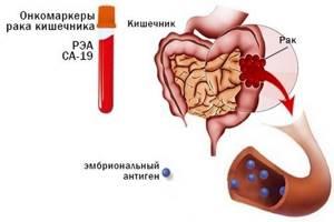 Анализ крови на раковые клетки – как называются?