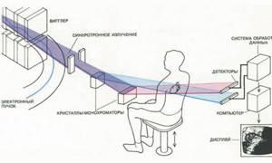 Рентген тазобедренного сустава: подготовка, нормы, как делают?