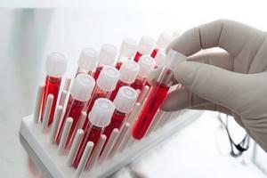 Анализ крови на гормоны: подготовка, расшифровка, как правильно сдавать?