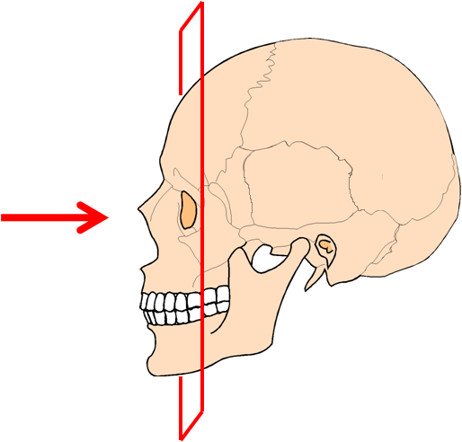 Компьютерная томография (КТ) околоносовых пазух и носа