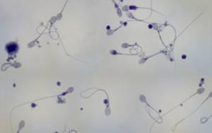 Что показывает спермограмма: расшифровка анализа, показатели