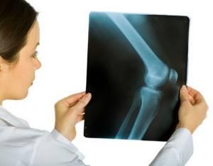 Рентген коленного сустава: что показывает, как выглядит здоровый сустав?