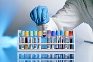Серологический анализ крови: расшифровка, зачем его делают?