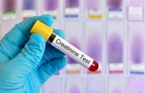 Анализ крови на креатинин – что это такое?