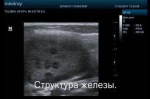 УЗИ слюнных желез: все о процедуре