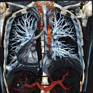 Спиральная компьютерная томография – в чем ее особенности?