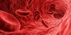 Микроцитоз в общем анализе крови – что это?