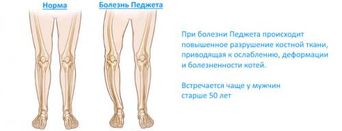 Сцинтиграфия костей скелета: что это такое и зачем ее делают?