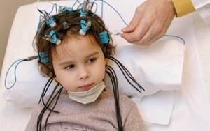 Эхоэнцефалография головного мозга – что это за процедура и как ее делают?
