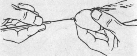 Мазок на флору у мужчин: что показывает, расшифровка результатов