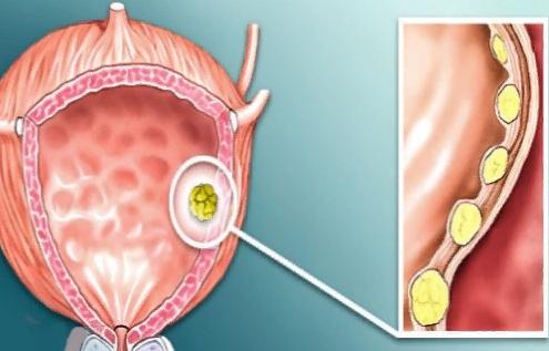Эритроциты в моче у мужчин: норма, причины повышения