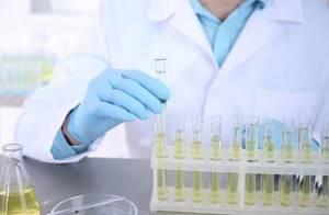 Норма лейкоцитов в моче у женщин, детей, мужчин: таблица, показатели