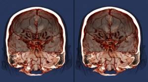 МРТ головного мозга: как делают, как подготовиться?