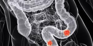 Рентген кишечника: как делают и что показывает?