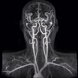 УЗИ сосудов головного мозга и шеи: что показывает и как делают?