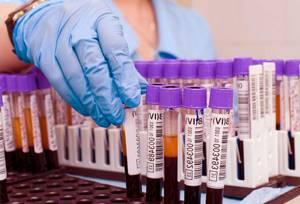 Что такое АСТ в биохимическом анализе крови?