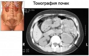Компьютерная томография почек (КТ): подготовка, на что смотрят?