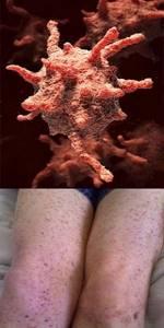Тромбоцитопения: причины и лечение, симптомы у взрослых, что это такое?