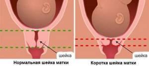 УЗИ на 21 неделе беременности: фото, норма, что смотрят?