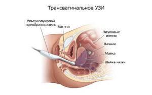 УЗИ на 19 неделе беременности: фото, нормы, пол ребенка