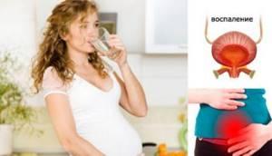 Эритроциты в моче при беременности: норма и причины повышения показателя