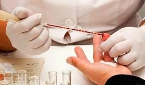 Тромбоцитоз: причины и лечение, симптомы, диета