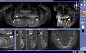 Компьютерная томография (КТ) челюсти – как делают?
