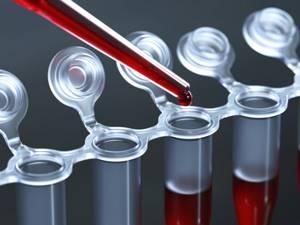 ГГТ в биохимическом анализе крови: что это такое?