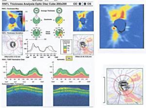 Оптическая когерентная томография глаза и сетчатки