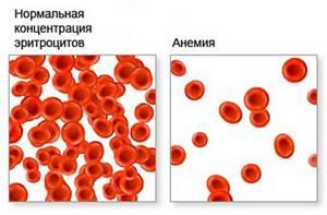 АНАЛИЗ КРОВИ на гликированный гемоглобин:[расшифровка, нормы]