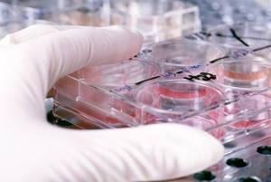 Анализ крови на инфекции: виды, расшифровка