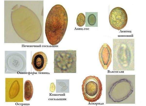 Анализ на яйца глист (соскоб) - как сдавать?