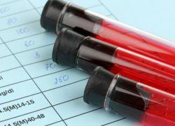 Анализ на мочевую кислоту в крови: подготовка, как сдавать, расшифровка