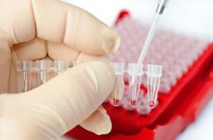 Подготовка к общему анализу крови – что нужно делать?