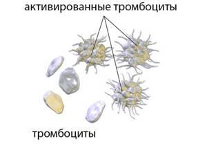 Средний объем тромбоцитов повышен: что это значит, основные причины