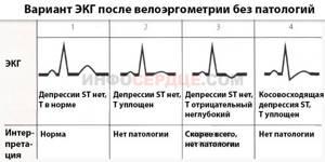 Велоэргометрия: нормальные показатели, как проводится?