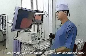 Ректороманоскопия или колоноскопия – что лучше?