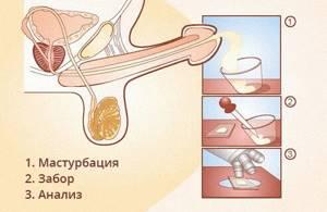 Воздержание перед спермограммой: сколько дней?
