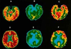 Позитронно-эмиссионная томография: в чем особенности?