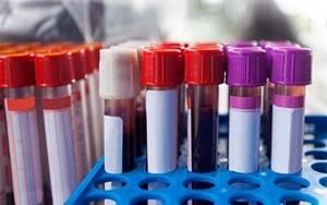 Можно ли есть перед общим анализом крови?