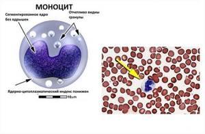 Моноциты повышены у взрослого в крови: что это значит, причины, что делать?