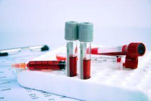 Анализ на гликированный гемоглобин: как сдавать, что показывает?