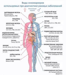 Анализ крови на онкомаркеры – что показывает?