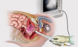 Что такое КТР на УЗИ при беременности?